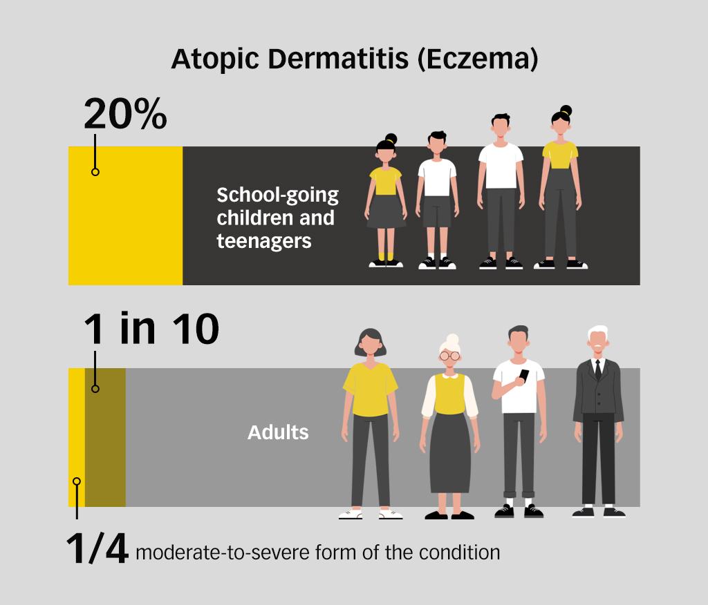Eczema & TCM1