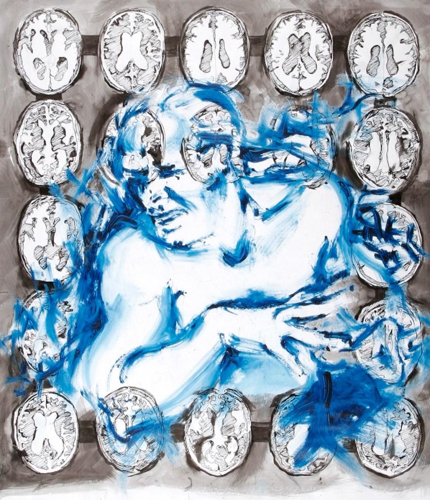 MigrainesAndMRIs