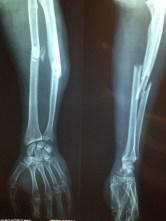 fracture-bone-2333164_640