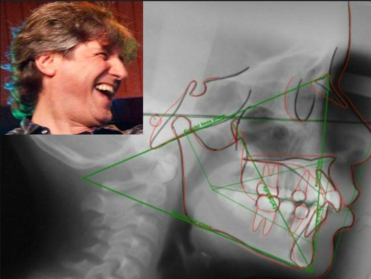 Una prótesis de platino impedirá que Boudou se ria mientras declare en su precesamiento.