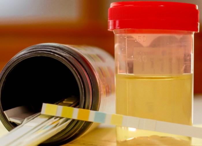kit de examen casero de próstata