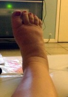 Lymphedema: What MDs Don't Know, What You Can Do on Pura Vida. Sometimes.