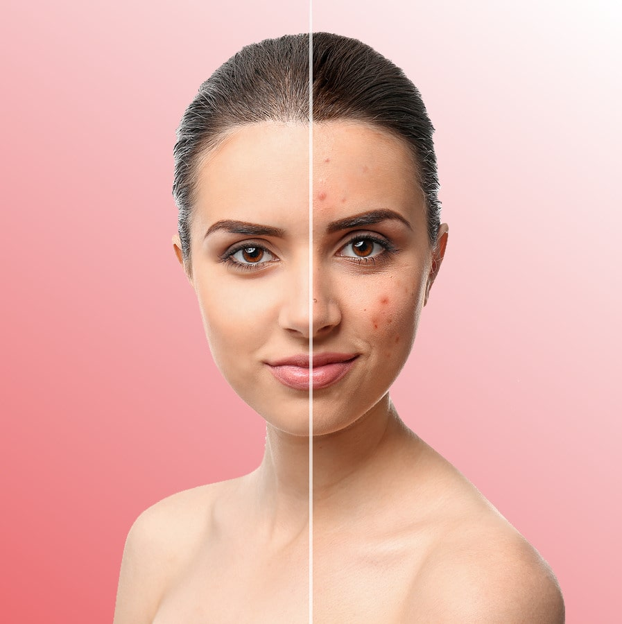 Acne Treatment Program | Pure Skin Pro
