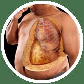 PURPLE SLIM - первое натуральное средство для похудения