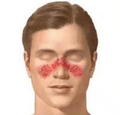 lupus en hombre
