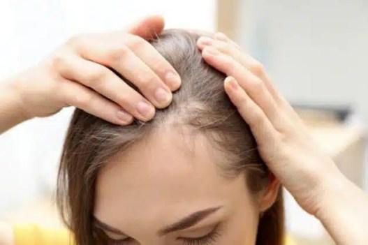 Alopecia efluvio telógeno