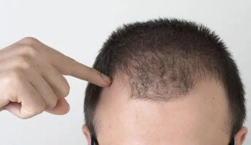 alopecia-difusa