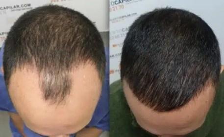tratamientos de alopecia y calvicie