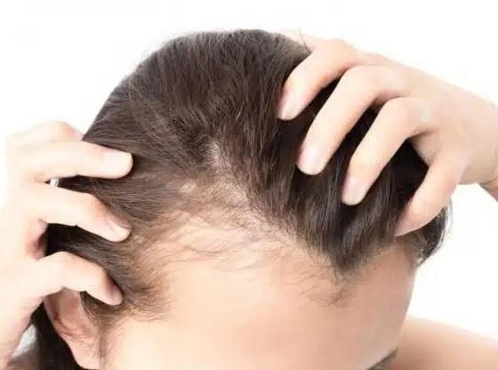 caída de cabello
