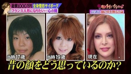 Japanese Woman Gets Plastic Surgery To Become A French Doll
