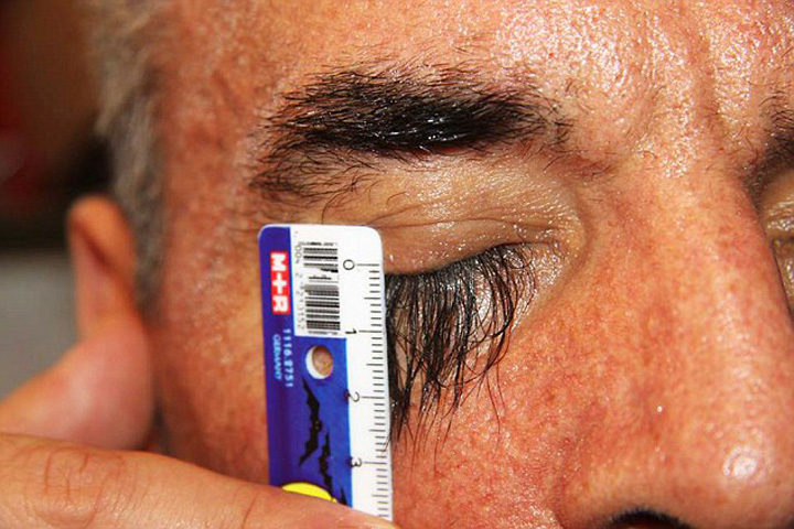 Secret Food Gave Man Super Long Eyelashes