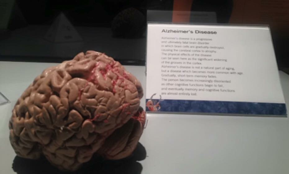 Alzheimers-disease-brain