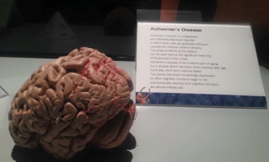 Alzheimers-disease-brain
