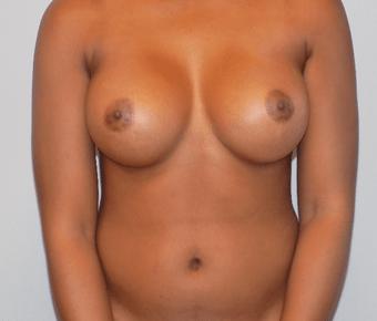 breast augmentation charlotte nc plastic surgery
