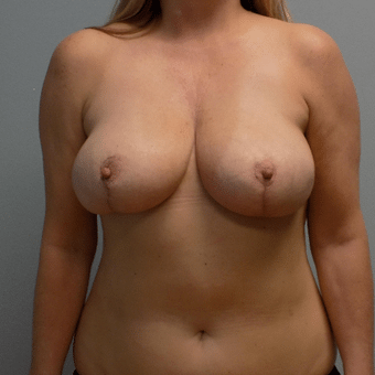 breast before and after charlotte nc implants