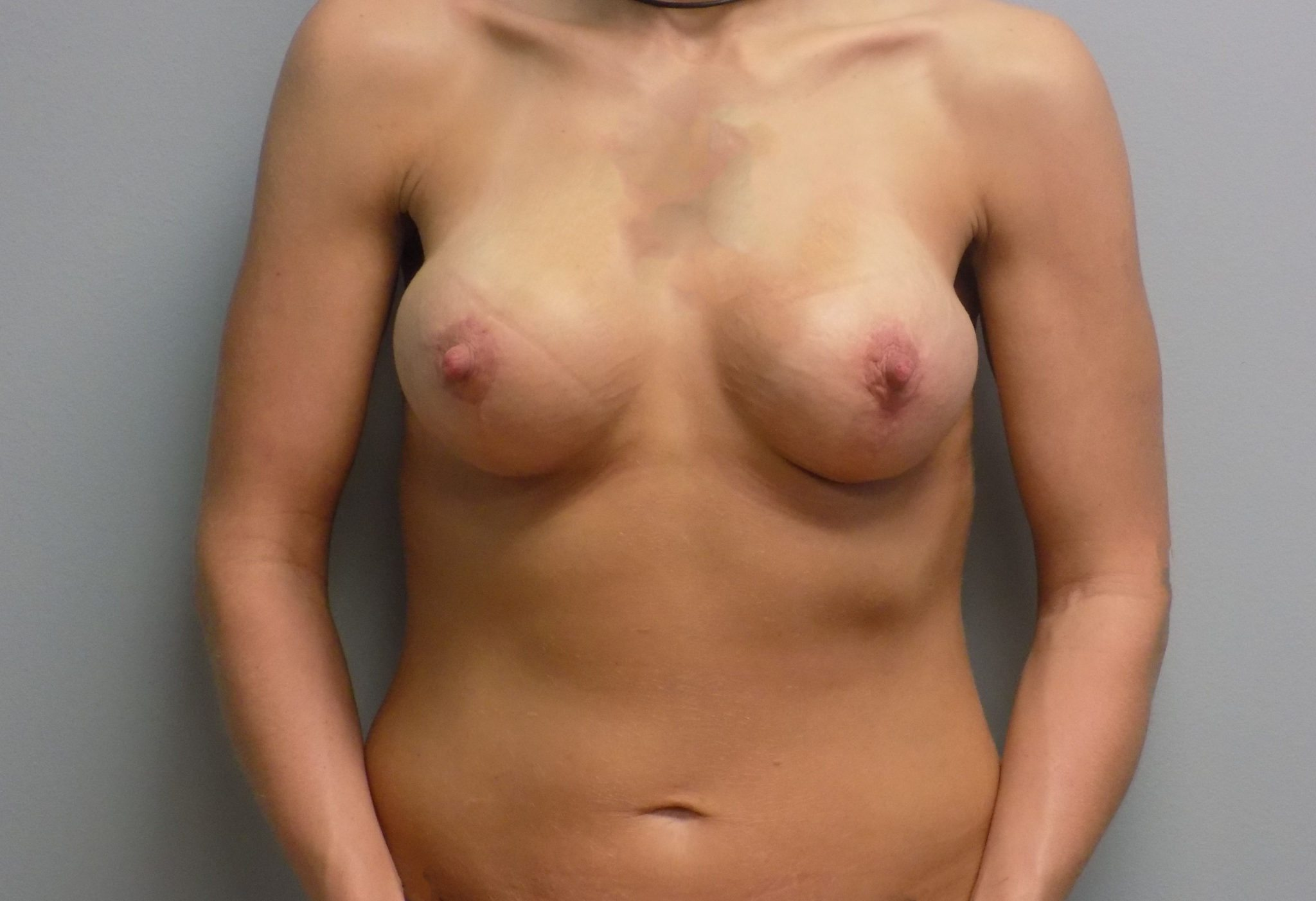 breast augmentation mommy makeover charlotte