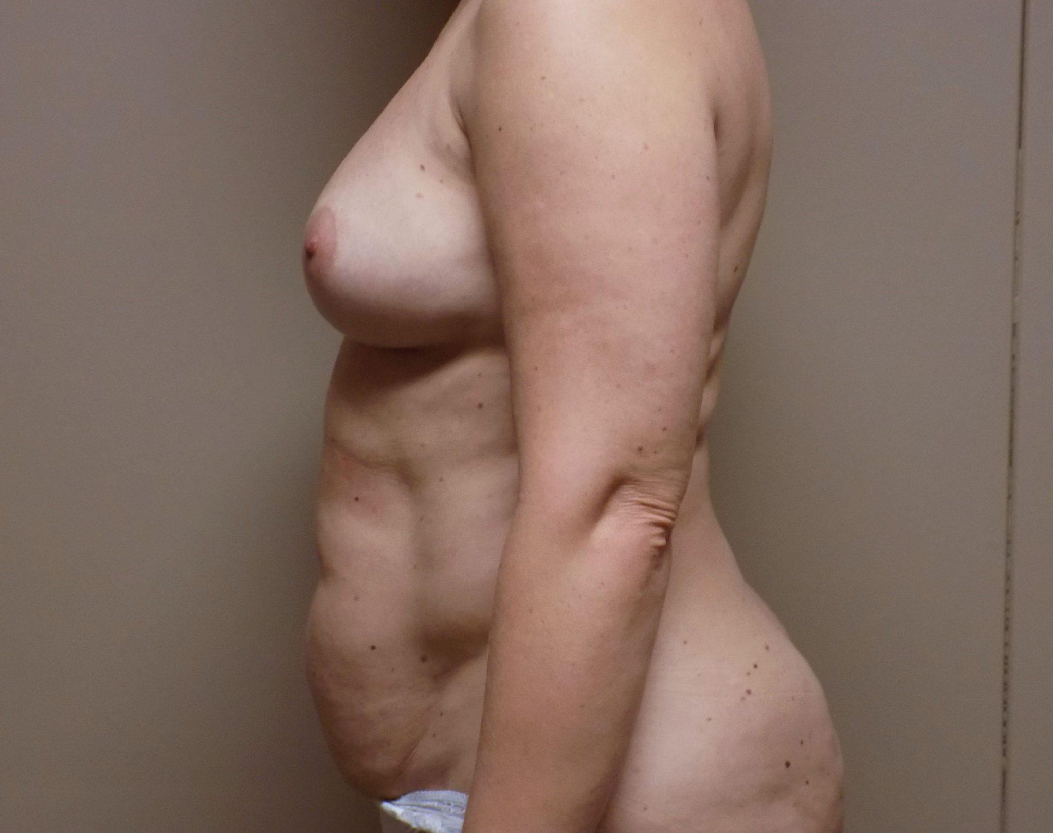 Tummy tuck bodytite facetite Charlotte