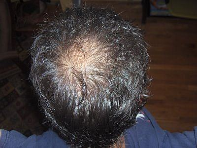 Will The Hair Regrow On Bald Spot With Natural Treatments