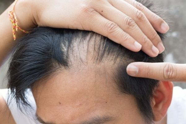 Is hair fall due to a telogen effluvium temporary? - Quora