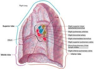What does bilateral hilar congestion in a chest Xray