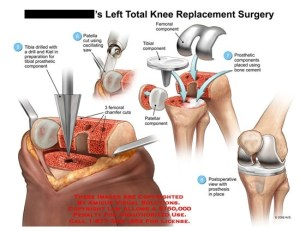 What is a knee replacement?  Quora