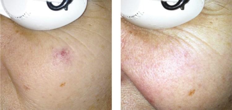 DUETTO MT EVO Antes y Después - angioma de araña