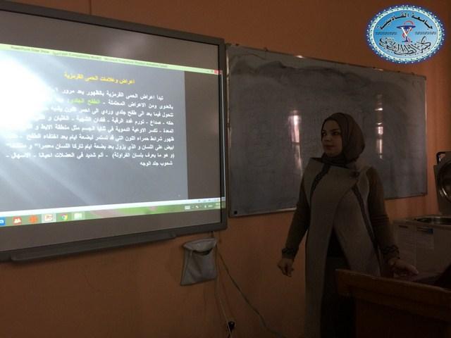 كلية الطب البيطري /جامعة القادسية تقيم حلقة نقاشية بعنوان الحمى القرمزية .