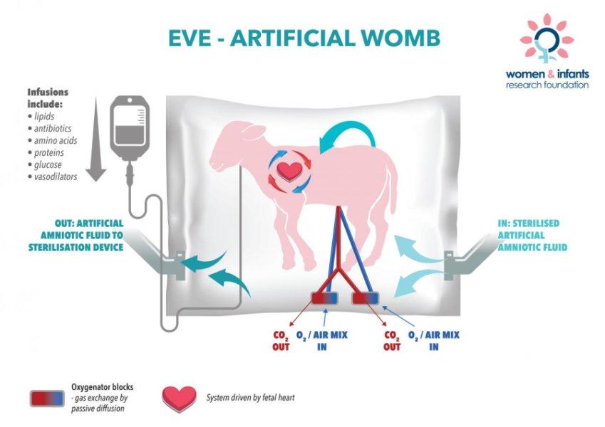 Este útero artificial aumenta las expectativas para los bebés ...