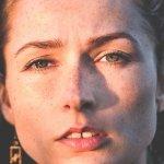 5 remèdes maison efficaces contre l'hyperpigmentation