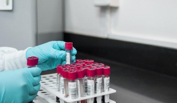 PCR negativos