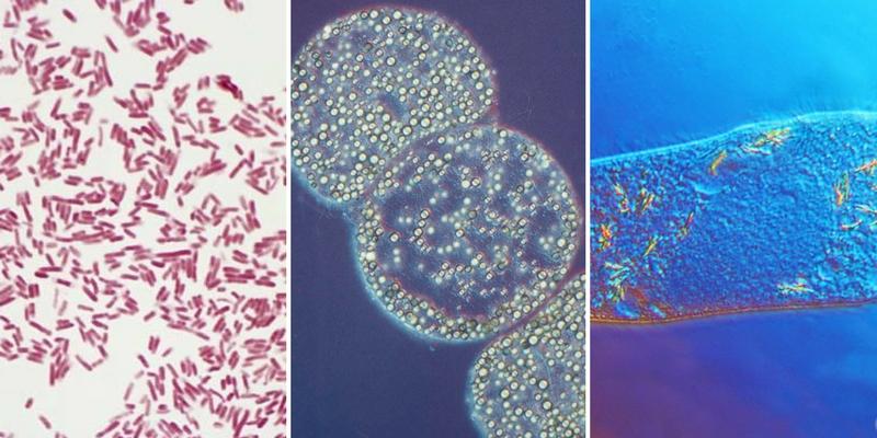 Bacterias pequeñas y Bacterias grandes