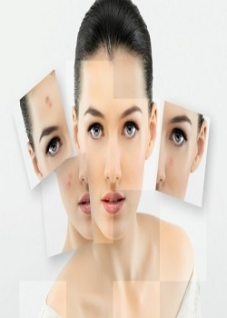 Acne Star Thanks To Get Obviate Acne Now By Following The Following Tips_Image Source Google