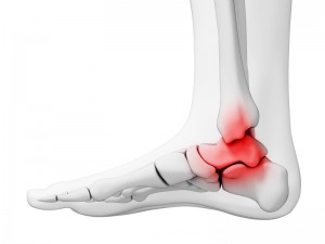 Stem Cell Therapy for Ankle Arthritis