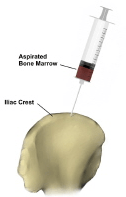 bone-marrow-aspiration2