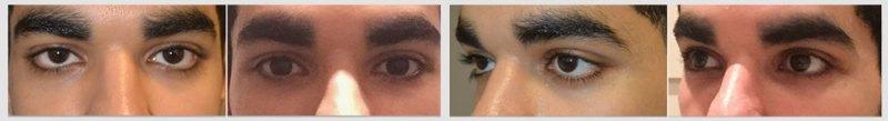 Tear Trough Treatment Sunken Eye