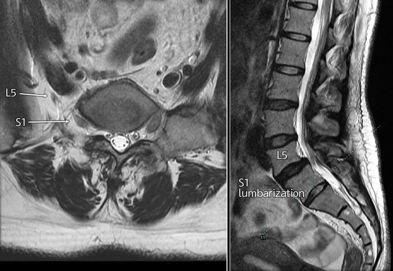 s1-lumbarization-nerve