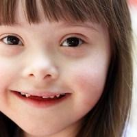 Síndrome de Down e saúde ocular