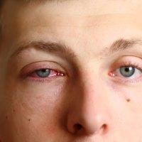 Aprenda como se prevenir dos surtos de conjuntivite viral