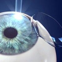 Cirurgia refrativa: um resumo com tudo o que você precisa saber