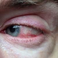 Blefarite: saiba mais sobre a doença ocular mais comum no mundo