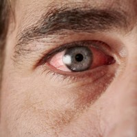 Ceratite infecciosa: problema ocular que pode te deixar cego!