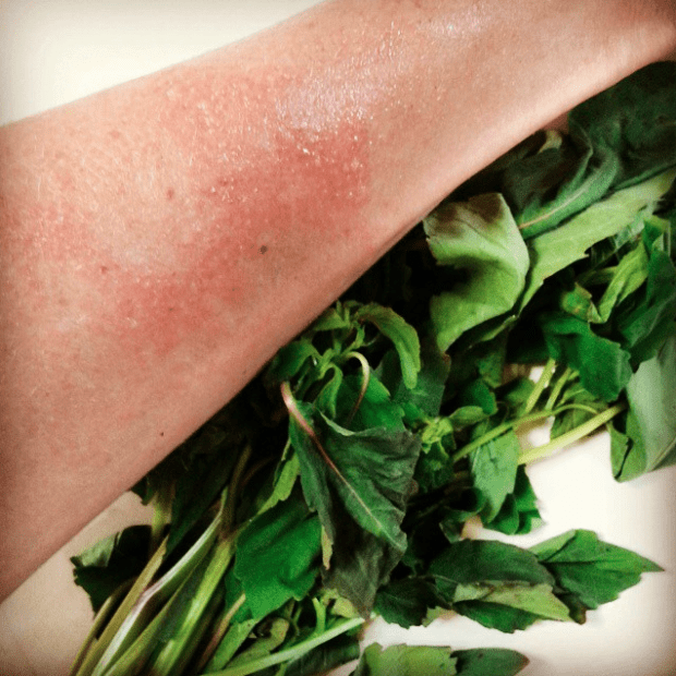 Natural Poison Ivy Care | Clean, the LuSa Organics Blog