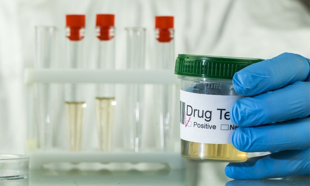 How To Fight a False Positive Drug Test