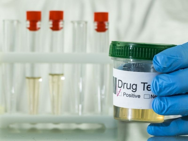 How To Fight a False Positive Drug Test