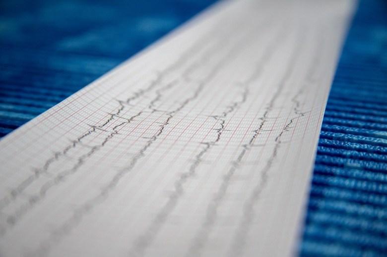 Ministério da Saúde lança Estratégia de Saúde Cardiovascular na Atenção Primária 3