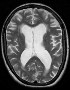 brainatrophy28exvacuo29