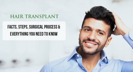 All That You Need To Do About Hair Transplants