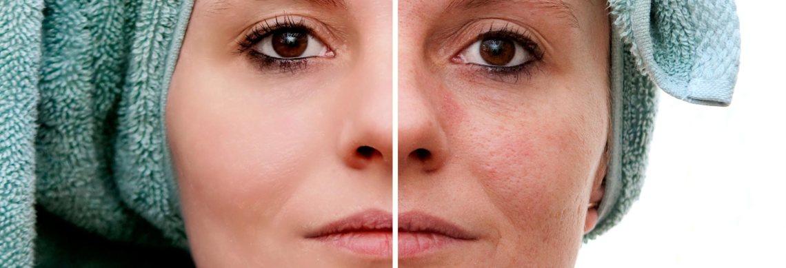 Radien Dermatology - Acne Scarring