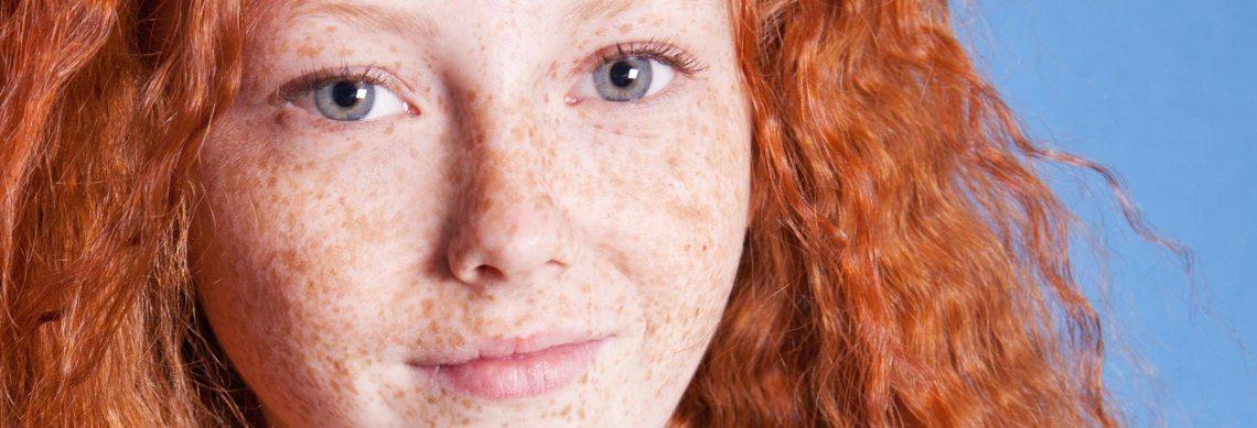 Radien Dermatology - Freckles and Sun Damage
