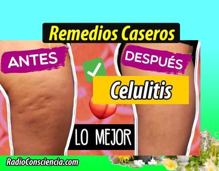 Remedio para la Celulitis